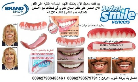 اسنان علوية ابتسامة هوليود طقم اسنان علوي بيرفكت سمايل قابلة للازالة اسنان