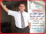 مركز مطهر اطفال اربد - ابو زيد